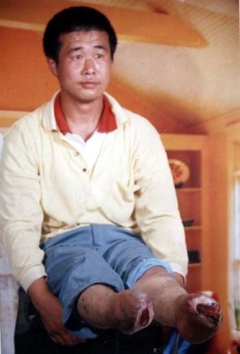 Инвалида без ног власти подвергали пыткам в течение 72 часов