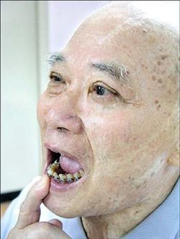Более 97% китайцев страдают болезнями полости рта