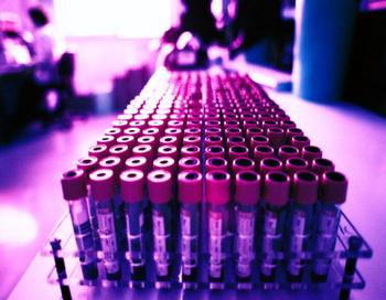 156 25 11 09 vaccine - В Канаде вакцина  от гриппа А/Н1N1, вызвавшая аллергическую реакцию, была отозвана