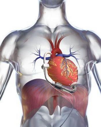 Механическое сердце - новая надежда?