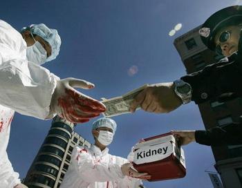 Кто гордится лидерством Китая в области пересадки органов?