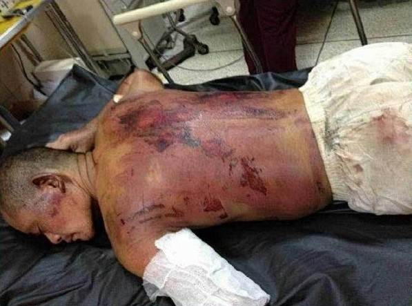 142 gana3 - Китайцы обвинили чиновников в нежелании помогать избитым в Гане соотечественникам