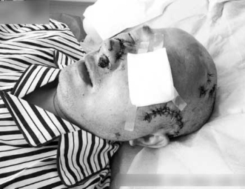 В Китае прохожие не помогли истекающему кровью пожилому мужчине