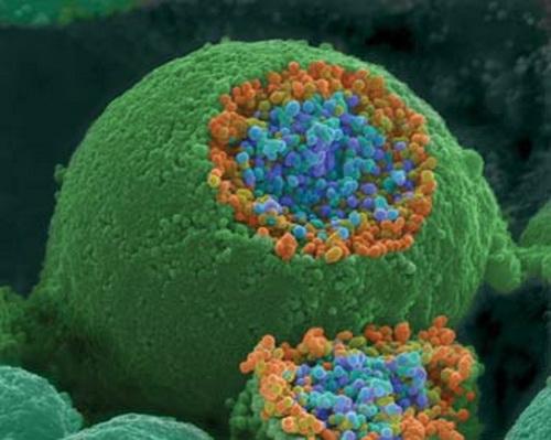191 shutterstock telo 3 - Как наше тело выглядит под микроскопом