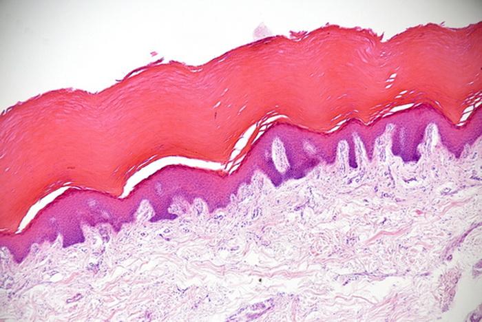 191 shutterstock telo 5 - Как наше тело выглядит под микроскопом
