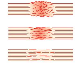 С помощью биоручки можно быстро заживлять любое повреждение ткани