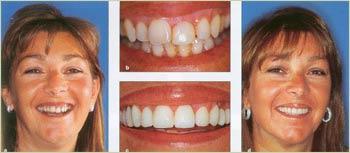Почему необходимо протезирование зубов. Имплантация поэтапно. Отбеливание и история развития методов