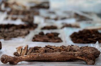 191 kosti - Самая старая опухоль найдена в кости неандертальца