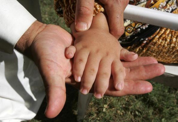 Все больше детей с врожденными дефектами рождается в иракском городе Фаллуджа. Фоторепортаж