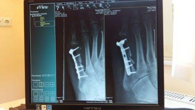 Рентген используется в медицине более ста лет