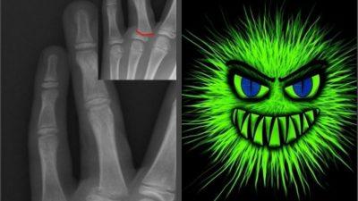 Парень сломал палец. Плотоядные бактерии уничтожили кожу до локтя за считаные часы