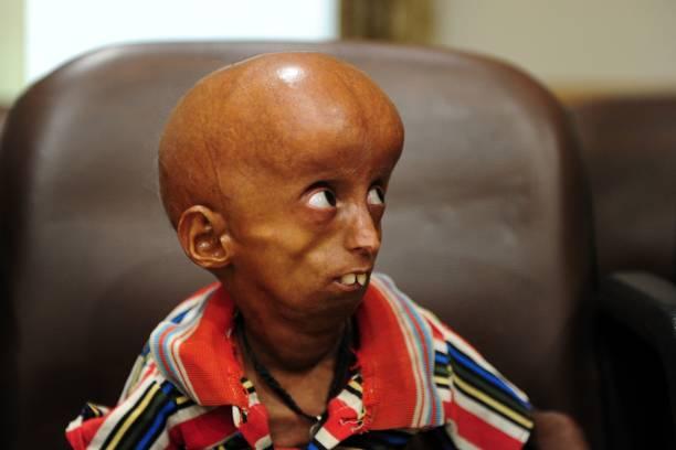 Молодой индийский больной прогерией Рупеш. Фото: SANJAY KANOJIA/AFP via Getty Images   Epoch Times Россия