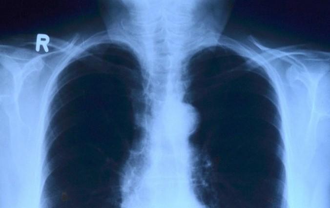 Мини-лучевой рентген плечевого сустава ищите в питерских клиниках