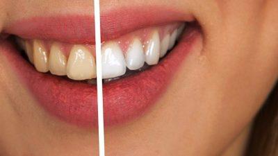 Девушка столкнулась со странной болезнью. Её зубы гнили и разрушались! Только через 10 лет врачи нашли причину