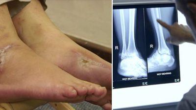 Мужчину тяжело ранили в ноги из автомата Калашникова. Но через 3 месяца он снова начал ходить благодаря занятиям цигун!