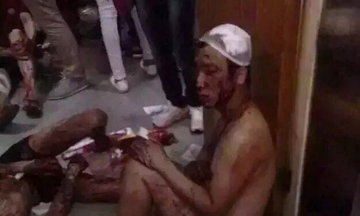 Житель Тяньцзиня, Китай, ранен осколками стекла в результате мощного химического взрыва в районе городского порта 12 августа. (Вэйсинь) | Epoch Times Россия