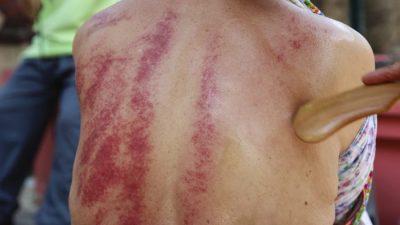 Гуа–ша – древняя китайская массажная техника снятия боли