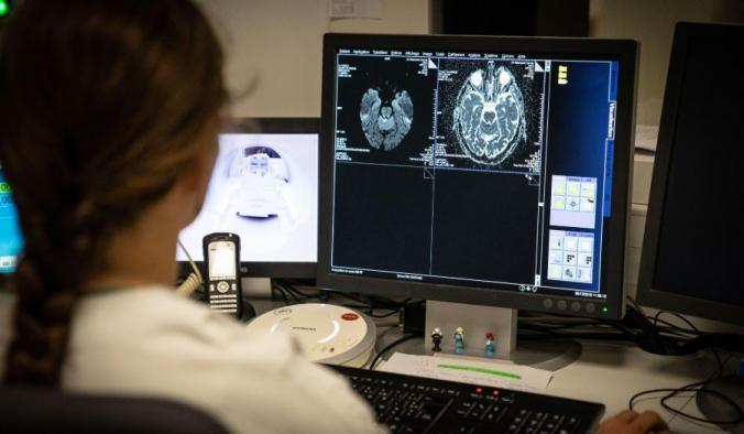 Сканирование мозга 77-летнего пациента с признаками инсульта. BSIP/Education Images/Universal Images Group via Getty Images | Epoch Times Россия