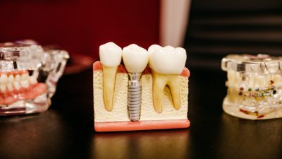 Имплантация помогает восстановить потерянные зубы