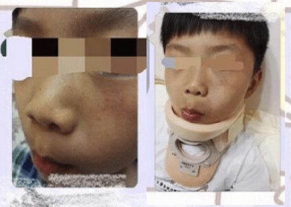 Студент, у которого был травмирован позвоночник. (Xinhua) | Epoch Times Россия