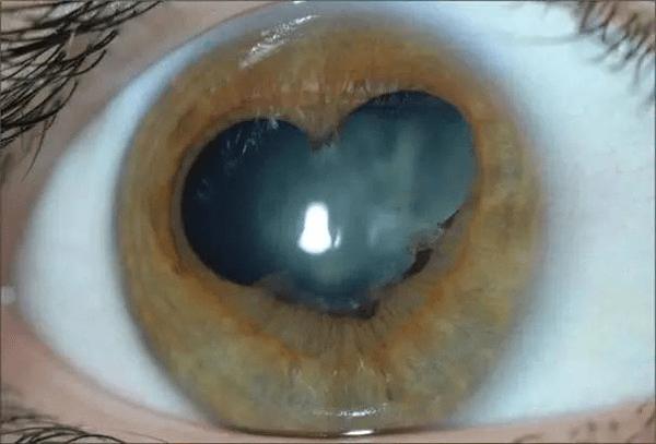 Глаз, пораженный синдромом. (WeChat) | Epoch Times Россия