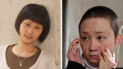 Горести молодой китаянки, изуродованной отвергнутым поклонником