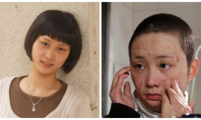 Чжоу Янь до и после нападения. (Sina Weibo) | Epoch Times Россия