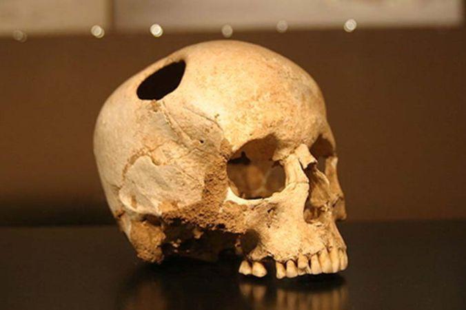 Трепанация черепа девушки, жившей 5500 лет назад. Она пережила операцию. Музей естественной истории, Лозанна. Фото: mrarkinstall.wikispaces.com, CC BY SA 2.0   Epoch Times Россия
