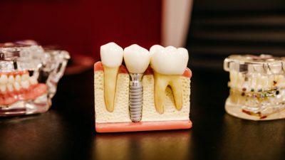 Лечение зубов без боли. Миф или реальность?