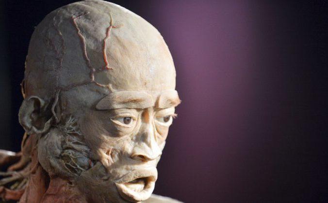 Пластинация мертвых тел показанная на выставке Real Bodies – это процесс использования жидкой силиконовой резины для предотвращения естественного процесса разложения тела. На изображении выше показано тело с предыдущей выставки под названием «Человеческое тело» в Киеве, Украина. Фото: SERGEI SUPINSKY / AFP / Getty Images | Epoch Times Россия