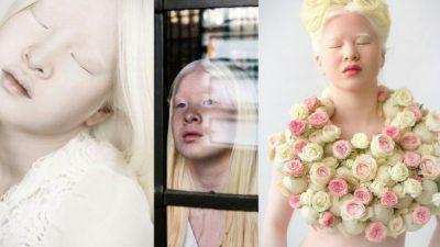Брошенная родителями девочка-альбинос стала моделью