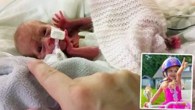 Девочка родилась на три месяца раньше срока. И твёрдо решила выжить!