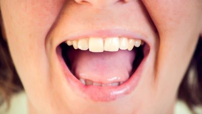 Как сделать зубы здоровыми?