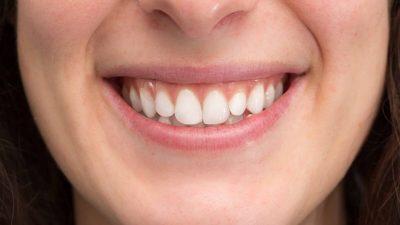 Микропротезирование как современный метод восстановления зубов