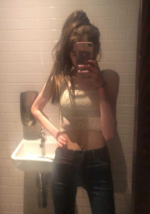 Девушка довела себя до анорексии. Но ей захотелось жить