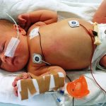 Дети повсему миру массово заражаются малоизвестным вирусом