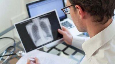 Новосибирский учёный случайно открыл новое вещество для рентгенографии