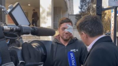 Мэр Москвы навестил в больнице избитого в метро Романа Ковалёва