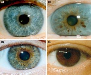 Различные варианты цвета глаз: a) голубые (отсутствие пигмента) b) голубые с вкраплениями карего c) зелено-карие d) карие. Фото: Springerlink.com