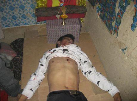 Огнестрельные раны на телах убитых тибетцев свидетельствуют о том, каким образом подавляли демонстрации протеста китайские солдаты. Фото с epochtimes.com
