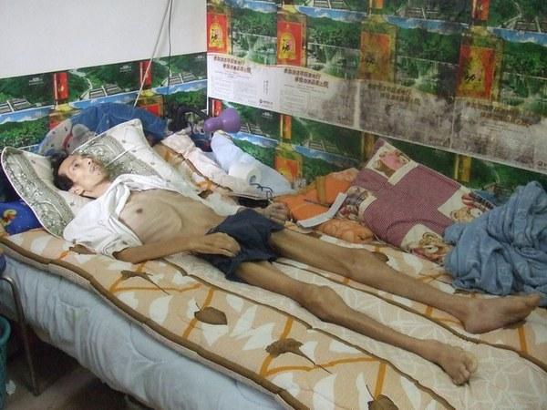 После пребывания в трудовом лагере Чен Цьенчжун весил около 35 кг. Фото: minghui.org