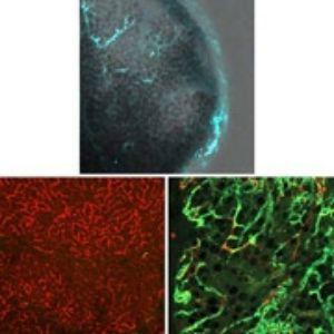 Сверху: наночастицы (голубой) нацеливаются на опухоль поджелудочной железы (серый). Слева внизу: здоровая ткань поджелудочной железы (красный). Справа снизу: опухоль с наночастицами (зеленый) атакует кровеносные сосуды. Фото: Milan Makale, Bharat Majeti, Eric Murphy/UCSD
