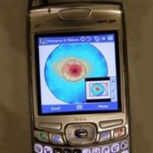 Для применения новой технологии медику желательно использовать телефон с экраном высокого разрешения. Фото: Boris Rubinsky, UC Berkeley