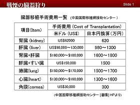 Список с ценами, опубликованный на странице сайта China International Transplantation Network (Китайская международная сеть трансплантологии)