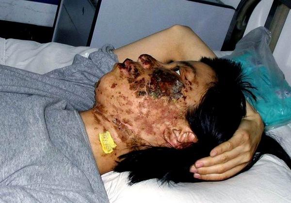 Несколько часов китайские полицейские били по лицу электрическими дубинками последовательницу Фалуньгун Гао Жунжун из провинции Ляонин