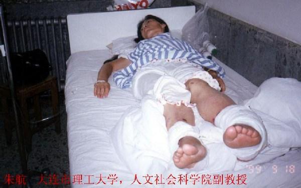 Доцент академии наук социологии и культуры политехнического университета г.Далянь провинции Ляонин, последователь Фалуньгун Чжу Хан после пыток в китайской тюрьме