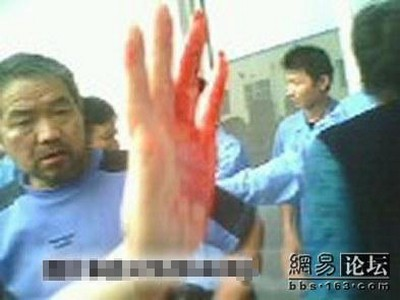 Протест местных жителей против безнаказанности власть имущих, закончился массовым избиением первых. Город Цзинцзян провинции Цзянсу. Фото с epochtimes.com