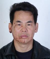 Адвокат Чен Хай после избиения полицейскими агентами. 13 апреля 2009 г. Фото: The Epoch Times