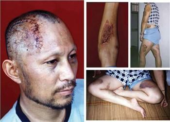Следы пыток на телах последователей Фалуньгун, которым они подверглись в китайских тюрьмах и лагерях Фото: minghui.org