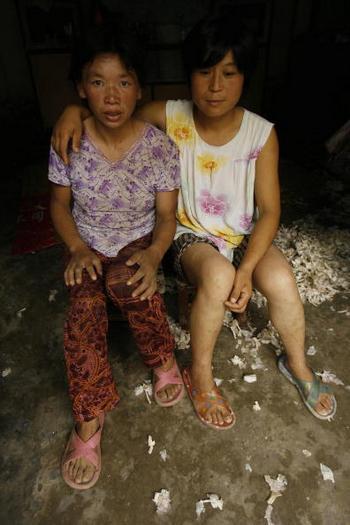 Две больные СПИДом из деревни в провинции Хэнань. Из-за дискриминации со стороны жителей деревни, они практически общаются только друг с другом. Фото: PETER PARKS/AFP/Getty Images